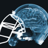 Football Concussion