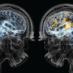 TBI, Inflammation and Brain Disease