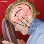 Concussion mTBI