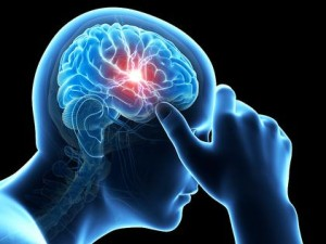 Underrecognized Sleep Disorders Persist Following mTBI